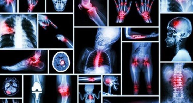 A dor fala mais do que estamos vivendo do que se imagina.Se você está sofrendo com algum tipo de dor, este post pode ajudar a encontrar a causa.Não se assuste se essa causa não for uma inflamação ou lesão, mas um problema emocional.