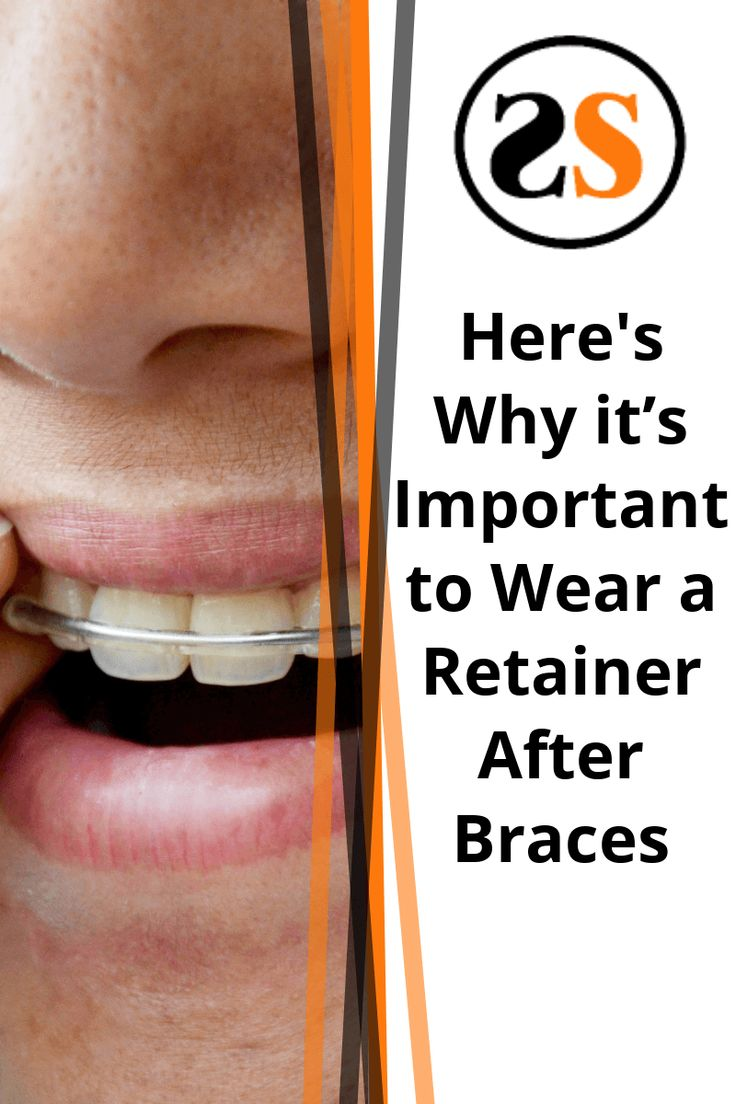 Why It's Important to Wear a Retainer After Braces After
