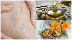 La combinación de aceite de oliva con caléndula nos permite obtener un tratamiento natural contra las venas varices. Descubre cómo prepararlo en casa.