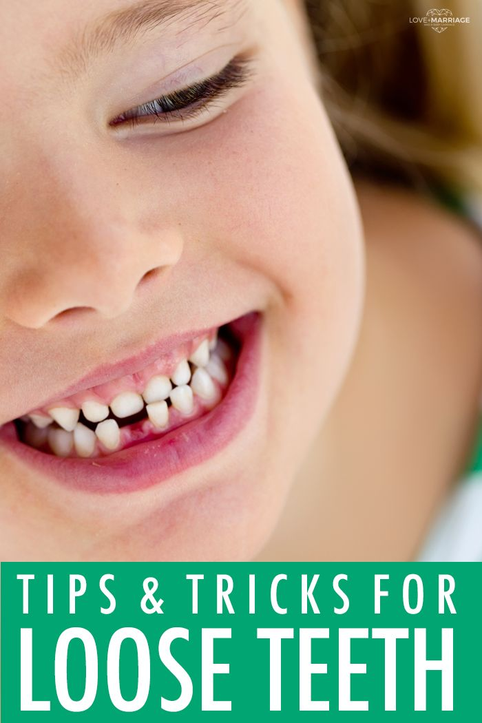 My kid has their first loose tooth - what the heck do I do??
