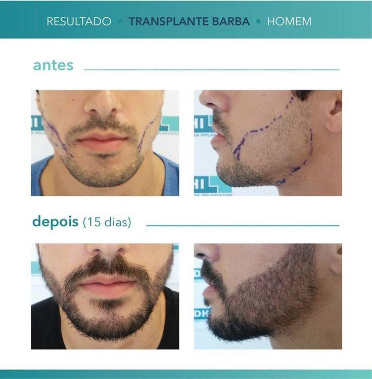 O implante de barba esta na moda