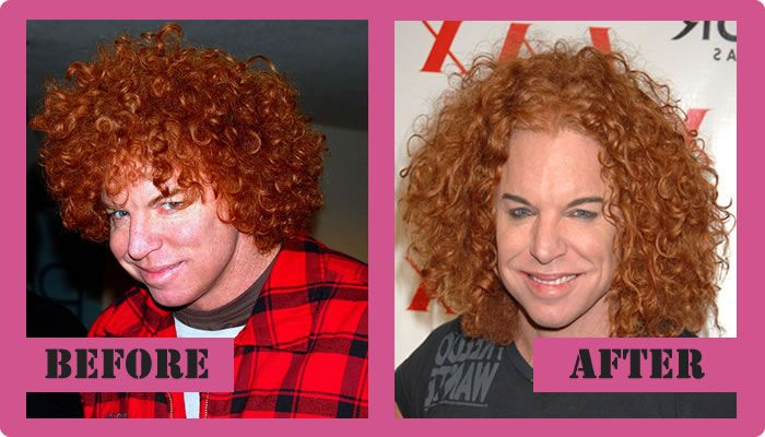 Carrot Top Plastic Surgery Before And After Carrot Top Plastic Surgery #CarrotTopPlasticSurgery #CarrotTop #gossipmagazines