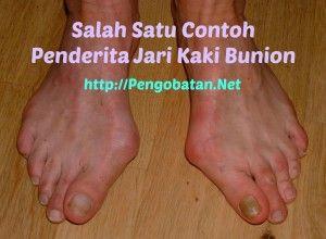 Obat Herbal Bunion  Bunion adalah kelainan bentuk dari jempol kaki. Kelainan bentuk ini terjadi ketika bonggol kaki berkembang di bawah jempol kaki yang menyebabkan jempol kaki terdorong ke depan dan ke samping menuju jari kaki lainnya. Kondisi ini dapat menyebabkan nyeri yang hebat, terutama karena bunion terletak pada sendi kaki. Ketika berjalan, seseorang secara alami akan menumpukan bebannya pada sendi tersebut, menyebabkan nyeri yang sangat menyiksa.