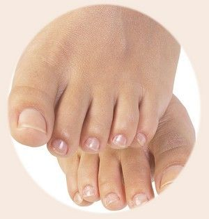 Nail fungus is a common nail disorder affecting several people all over the world. It is significant to treat a nail fungus infection early. If not treated, nail fungus can be very unsightly, painful and horrid.