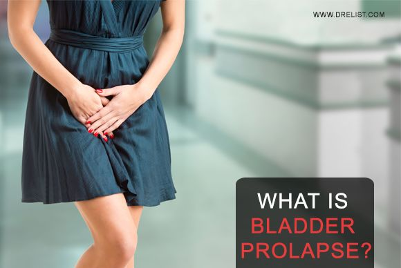 17 Images About Female Urology On Pinterest Read More