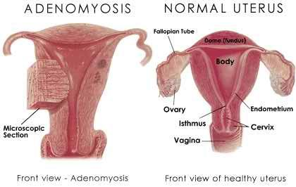 A uterus affected by adenomyosis vs. a healthy uterus.