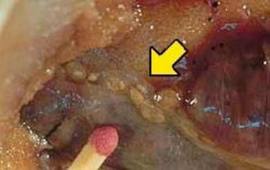Worm diseases in humans photo of anisakis worms in the for Fishing eye syndrome