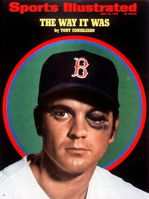 """Tony Conigliaro  1967 hit by pitch  RIP to Tony Conigliaro, the greatest """"could have been"""" in Red Sox history."""