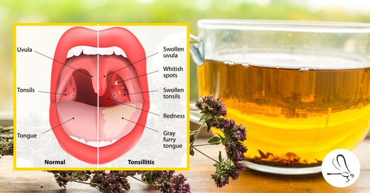 The Oregano Tea That Helps Treat Strep Throat, Sinus Infections, Flu, and More
