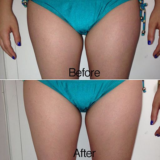 Laser Fat Removal Results?