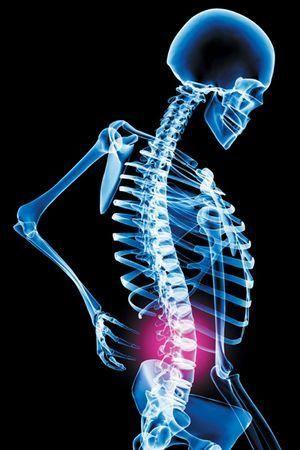 Back Pain & Mitral Valve Prolapse