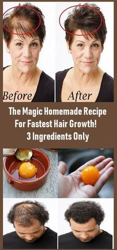 The Magic Selfmade Recipe For Quickest Hair Development! three Elements Solely