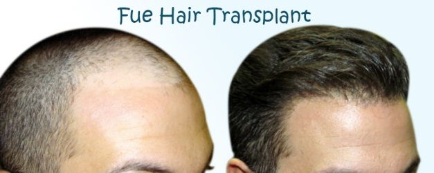 Hence, you have finally taken the big important decision to bring your hair back…huh? Wonderful! If you have opted for Follicular Unit Extraction or #FUEHairTransplant, let me ask; have you taken necessary pre-operational preparation? Sharing with you some of the preparation tips that a patient needs to follow before undergoing the transplantation surgery. Here you go!