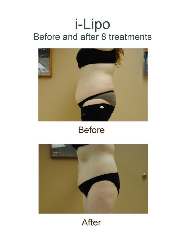 Before and after result photos after 8 i-Lipo #non-invasive laser #liposuction t…