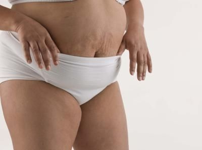 ways to lose weight in 90 days