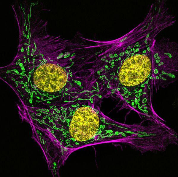 Komórki śródbłonka tętnicy płucnej bydła, fot. Muthugapatti K. Kandasamy