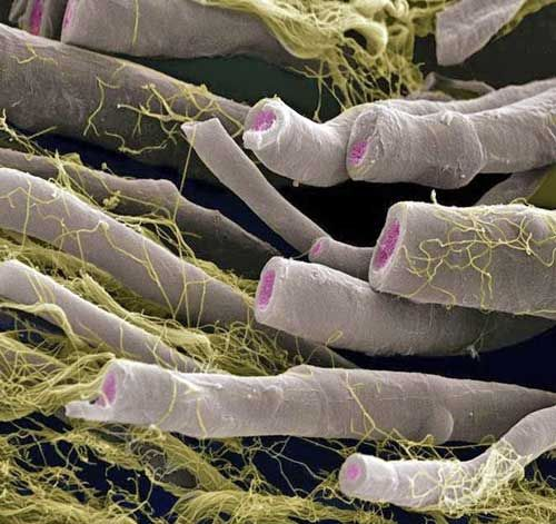 Fibras nervosas mielinizadas. A bainha de mielina aparece na cor  cinza, o rosa é o axoplasma e o endoneuro (tecido conjuntivo) amarelo.  Aumento: 650XIncríveis imagens de microscopia eletrônica (MEV) | Diário de Biologia