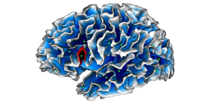Scientists have identified a cerebral marker specific to autism that can be detected by MRI and is present as from the age of two years. The abnormality thus detected consists in a less deep fold in Broca's area, a region of the brain specialized in language and communication, functions that are impaired in autistic patients. This discovery may assist in the earlier diagnosis and management of these patients.