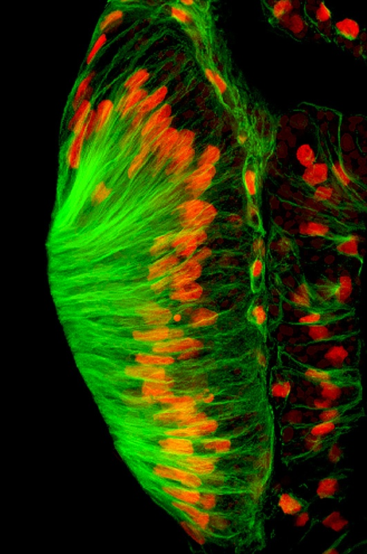 Wallingford discovered a novel protein, Shroom3, regulates the microtubule cytoskeleton during epithelial morphogenesis by inducing the redistribution of the microtubule building block, tubulin (green). This image shows tubulin distribution in Xenopus cement gland epithelial cells (nuclei shown in red).  COURTESY OF JOHN WALLINGFORD: Courtesi, Cell Nuclei, Xenopus Cement, Microtubul Building, Building Blocks, Tubulin Green, Cement Gland, Novels Protein, Epitheli Cell