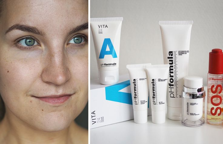 pHformula features on http://www.lily.fi/blogit/nude/superhelea-iho-pinnoitushoidolla : I tried two treatments; M.E.L.A -  first and second time and A.C.N.E. I have had no further skin problems since last summer. My breakouts disappeared completely after treatment!  #results #treatment #phformula