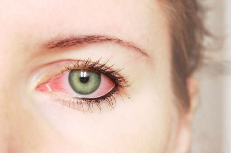 Treatments for Conjunctivitis
