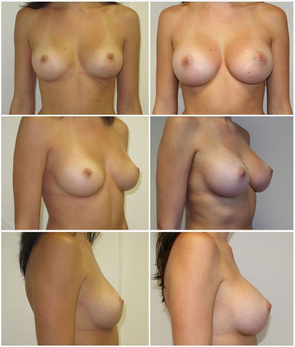 After before and enhancement adult breast