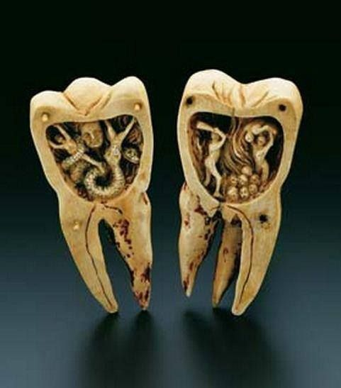 5000π.Χ - Ο μύθος των σκουληκιών των δοντιών