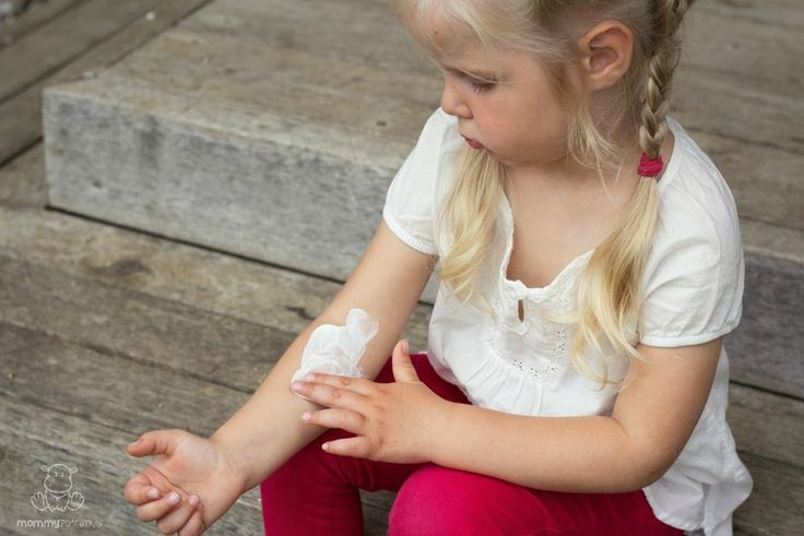 10 Natural Remedies For Eczema - MommypotamusMommypotamus  