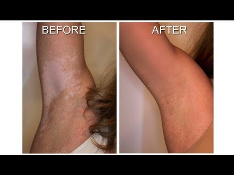 --- http://vitiligotreatment.wikiihow.com ---  Using This Powerful Secret Information, Thousands of Vitiligo Sufferers Have Been Successful in Stopping The Spread of Their Vitiligo Immediately and Curing Their Vitiligo Within 2 Months, Naturally and Permanently!