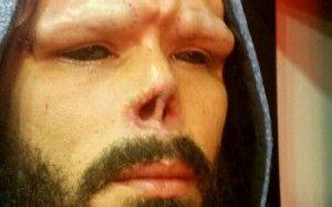 Galería: El venezolano obsesionado por las modificaciones corporales se deshizo de su nariz, ¿Habrá llegado demasiado lejos?