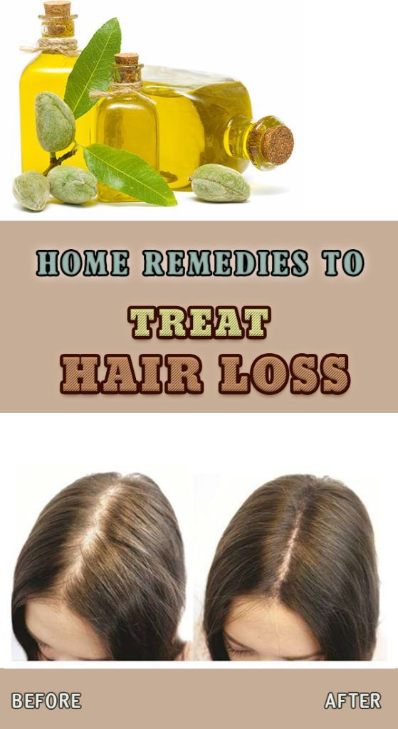 9_home-remedies-to-treat-hair-loss