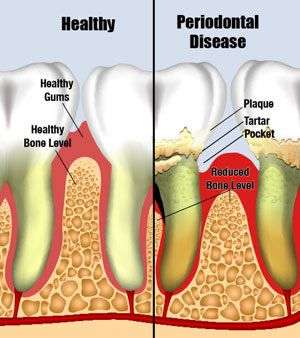 Explained Of Periodontal Diseases
