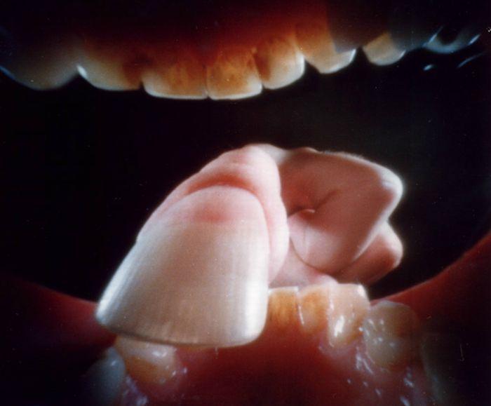 Resultado de imagen para camara dentor de la boca