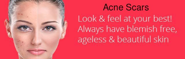If acne scars bother you #treatment can diminish #acne scars. The key to element of effective treatment. Know more