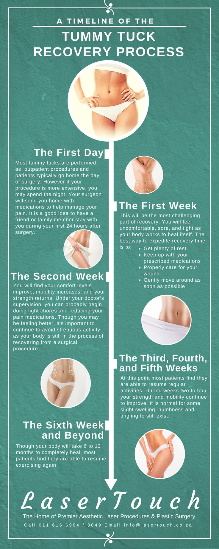 A Timeline of the Tummy Tuck Recovery Process Tummy