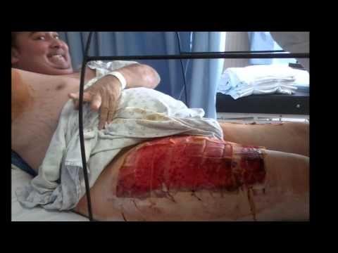 Testimonio de araña violinista en Ecatepec - YouTube