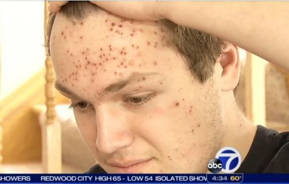 California High School Wrestler Claims He Contracted Herpes During Match