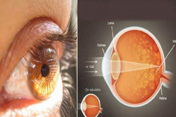 Découverte incroyable : Cet ingrédient vous aide à améliorer votre vison de 97%! Alors, il est temps de jeter les lunettes.