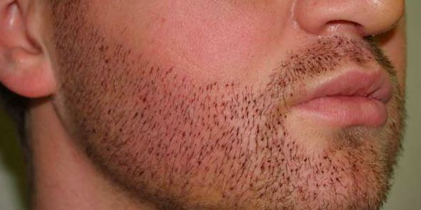Beard transplants for extra manliness.  #bizare #plastic #surgery