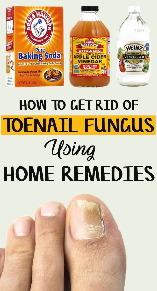 How to Get Rid of Toenail Fungus – 9 Home Remedies Included | Nail ...