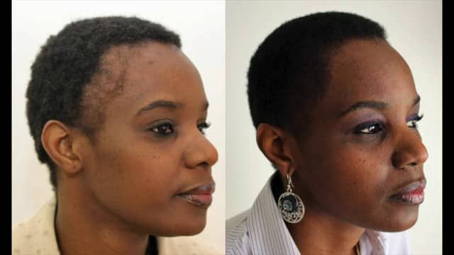 FUE Hair Transplant - black women african 1382 grafts - full shaven on Vimeo