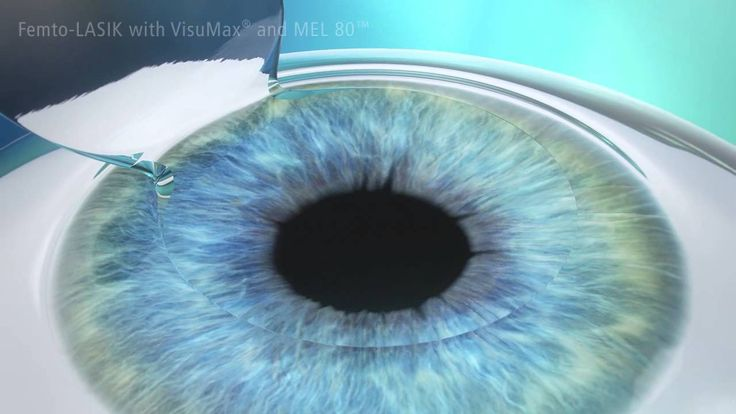 The Femto-Lasik makes LASIK even safer and more accurate.