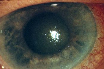 Causes, complications and treatment of a red eye - BPJ Issue 54