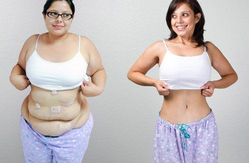 452 Best Bariatric Surgery Images On Pinterest Ab
