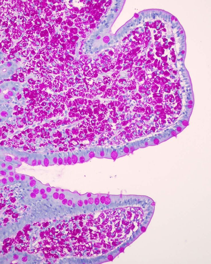 Whipples Disease - Small Bowel Biopsy