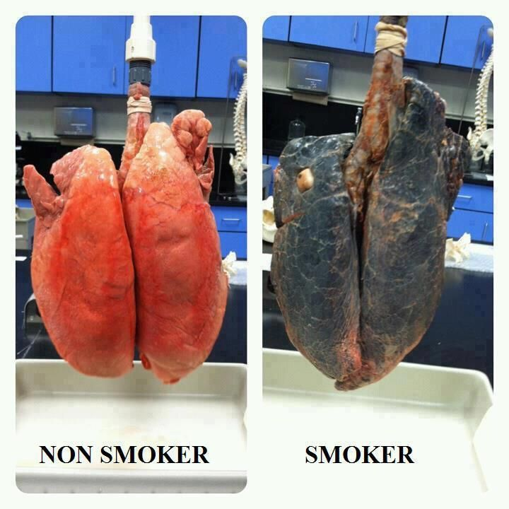 Effects that smoking will have on lungs.