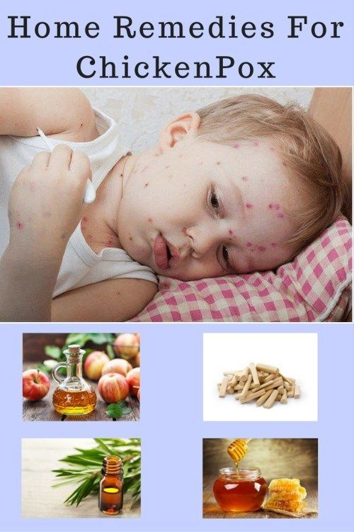 11 Best Home Remedies For Chickenpox Natural Home Remedies