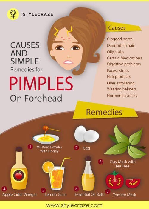pimples-on-forehead