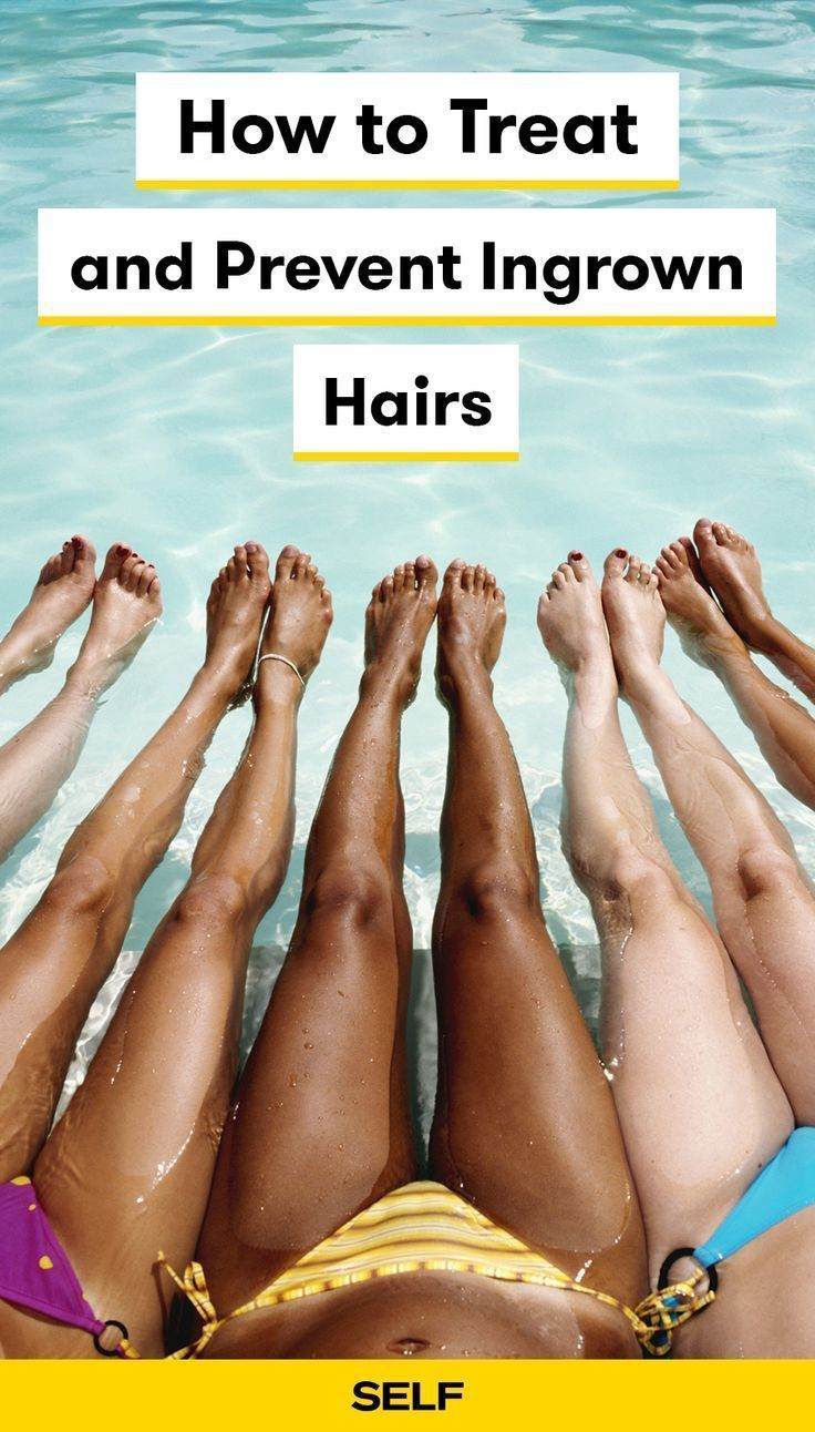These ingrown hair remedies will help remove and treat ingrowns around your bikini line, vagina, legs, and anywhere else you need it! We also have prevention methods to help keep them from occurring regularly with hair removal! #IngrownHairRemedies