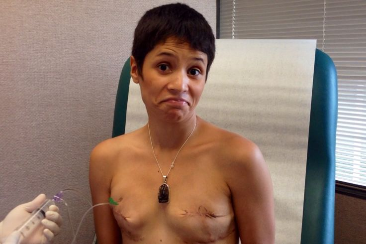 Another beautiful woman - post double-mastectomy journey.  Watch My Ta-Tas Grow. {adult}